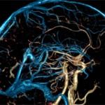 Чистка бляшек в сосудах головного мозга. Причины закупорки сосудов