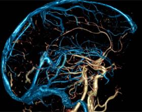 Чистка бляшек в сосудах головного мозга