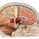 Доброкачественная опухоль мозга: симптомы, лечение, виды