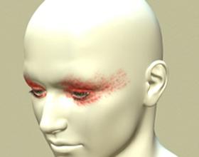 Головная боль в висках и глазах