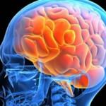 Внутричерепная гипертензия: что это, симптомы и лечение