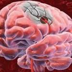 Внутримозговое кровоизлияние: причины и диагностика