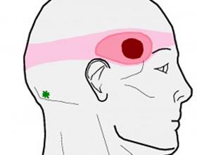 Боли в голове в одной точке