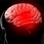 Глиосаркома головного мозга: лечение, прогноз
