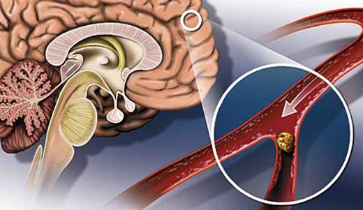 Атеросклероз артерий мозга