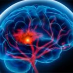 Как предотвратить инсульт головного мозга.Профилактика инсульта