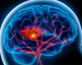 Как предотвратить инсульт головного мозга