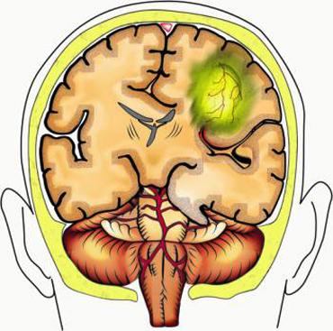 Дислокация головного мозга