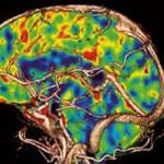 Как провести исследование перфузию головного мозга