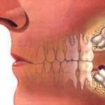 Что делать, если после удаления зуба болит голова?