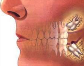 Что делать, если после удаления зуба болит голова