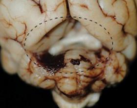 Арахноидальная киста головного мозга: причины и лечение
