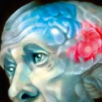 Что такое лейкоэнцефалопатия головного мозга