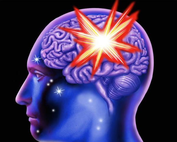Обширный инсульт мозга: последствия и лечение | Здоровье вашей головы