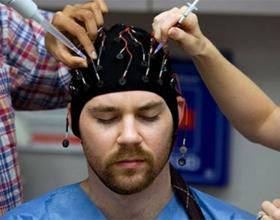 Посттравматическая эпилепсия
