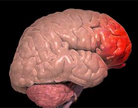 Ушиб головного мозга: симптомы, последствия, лечение