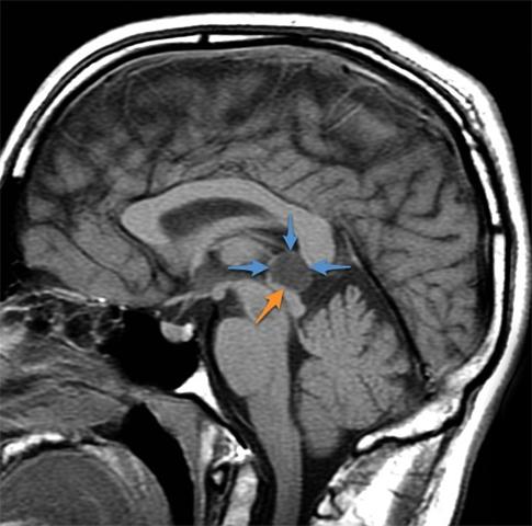 Пинеальная киста в головном мозге