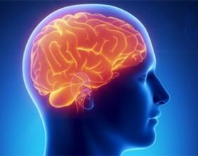 Инфаркт мозга: что это, симптомы и последствия