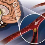 Спазм сосудов головного мозга: симптомы и лечение