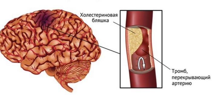 Тромб и инсульт