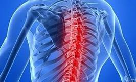 Инсульт в спинном мозге