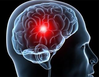 Мозговая ишемия