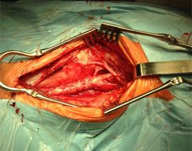 Каротидная эндартерэктомия: что это, этапы операции