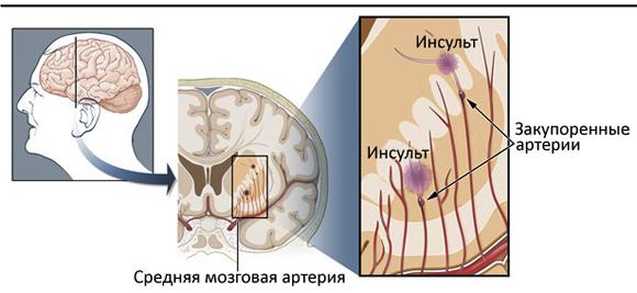 Лакунарный ишемический инсульт