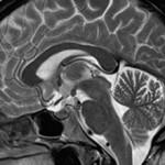 Что такое МРТ головного мозга (и как проводится)