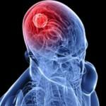 Неоперапельная опухоль головного мозга — что это, симптомы и лечение