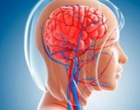 Острое нарушение мозгового кровообращения