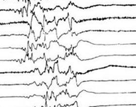 Пароксизмальная активность головного мозга
