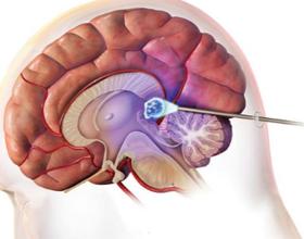 Пинеальная киста головного мозга: симптомы, лечение