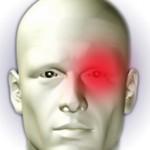 Кластерная головная боль: симптомы и лечение