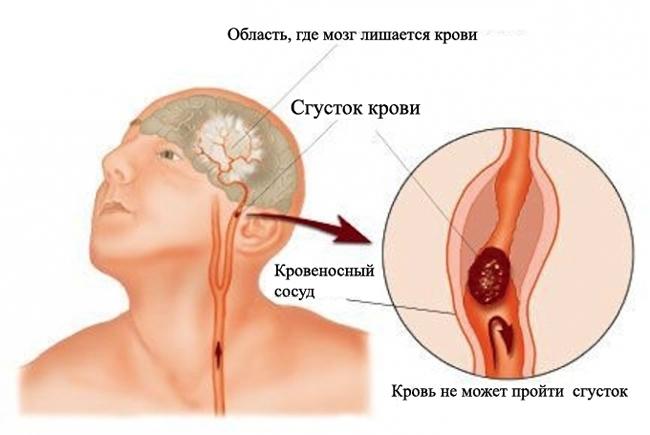 Стволовой инсульт