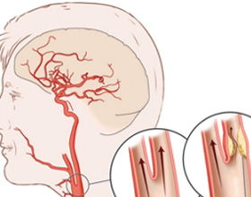 Стеноз сосудов головного мозга: что это, причины, лечение