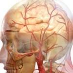 Стволовой инсульт: что это, прогноз, последствия