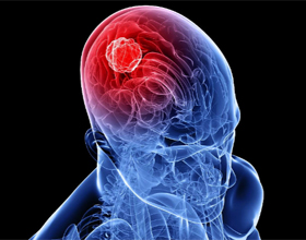 Рак головного мозга: симптомы, признаки, прогнозы