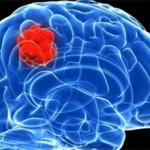 Глиобластома головного мозга: причины, симптомы, лечение