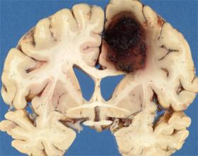 Кровоизлияние в мозг: симптомы и лечение