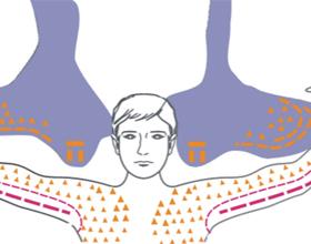 Болезнь мотонейрона: причины, симптомы и что делать