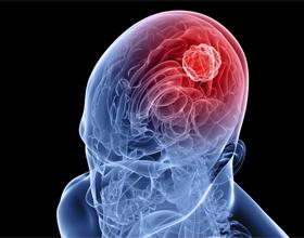 Воспаление коры и сосудов головного мозга