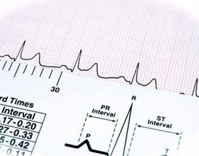 Причины высокого пульса