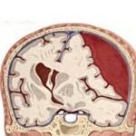 Гематома мозга: лечение с операцией и без нее