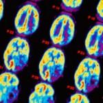 Глиальная опухоль головного мозга: что это, прогноз, лечение