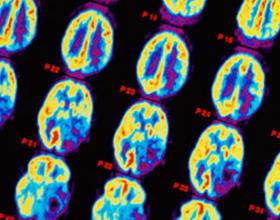 Глиальная опухоль головного мозга
