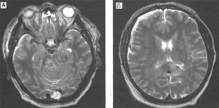 Диффузные изменения головного мозга