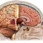 Злокачественная опухоль мозга: симптомы, лечение, продолжительность жизни