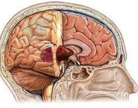 Злокачественная опухоль мозга: симптомы, лечение