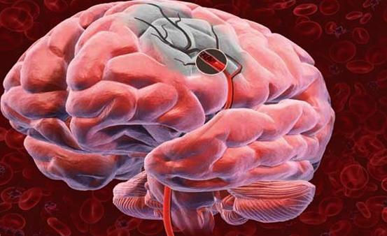 Кровообращение в мозгу